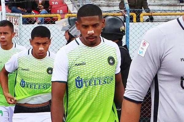 A Serrato le costó ser el delantero titular de Pirata en Huancayo. (Foto: Juan Aquino / DeChalaca.com)